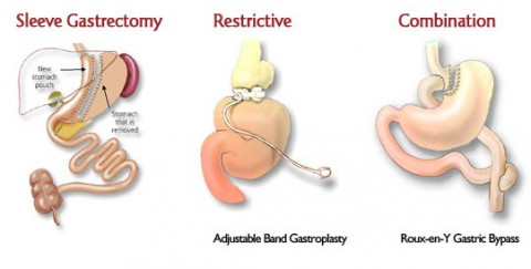 Bariatric (Weight Loss) Surgery - Assessment Services